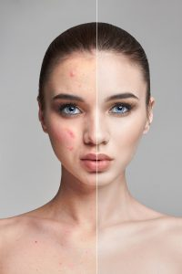 cbd cure for acne adama minerals